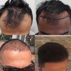Haartransplantatie Amstelveen.
