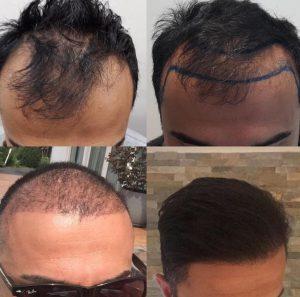 Haartransplantatie Hoofddorp.