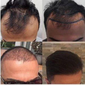 Haartransplantatie kosten.