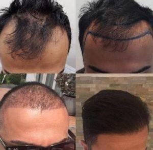 Soorten haartransplantaties.