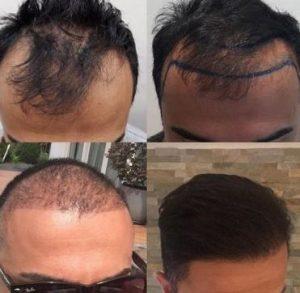 Waarom een haartransplantatie.