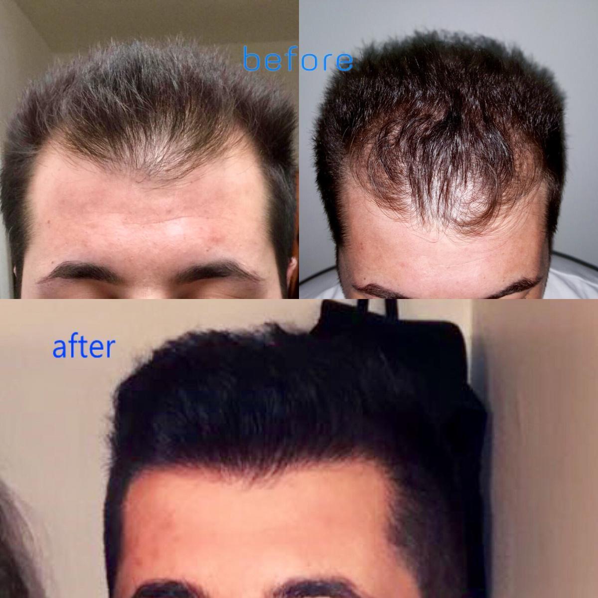 haartransplantatie-turkije