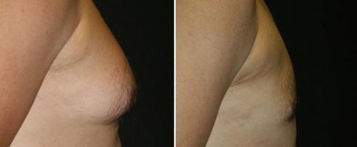 borstvorming-bij-mannen-behandeling-turkije