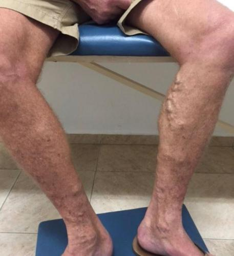 spatader-behandeling-voor-na